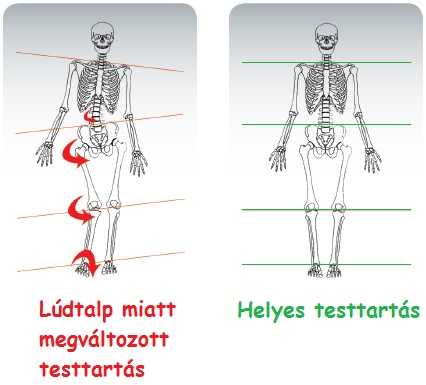 lúdtalp_testtartás