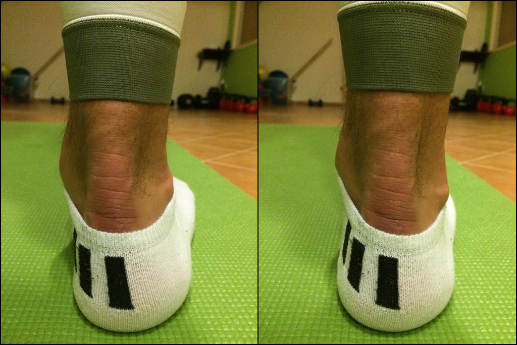 szupináló láb- neutrális